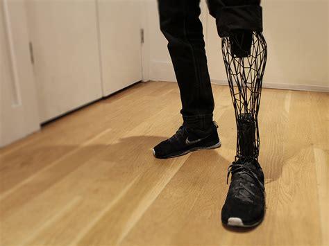 Prostatic legs picture 9