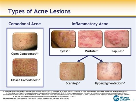 menopausal acne picture 3