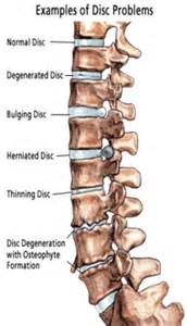 degenerative disc joint picture 10