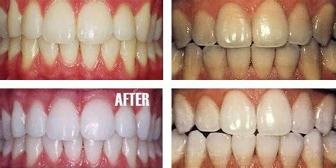 baking soda and peroxide to whiten teeth picture 12