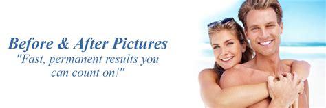 permanant hair removal in atlanta ga picture 3