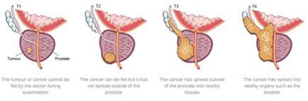 What are the stages of prostate cancer picture 10