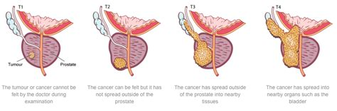 What are the stages of prostate cancer picture 13