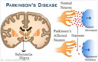bladder problems in patients with parkinson's disease picture 11
