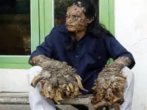 human skin deformities picture 17