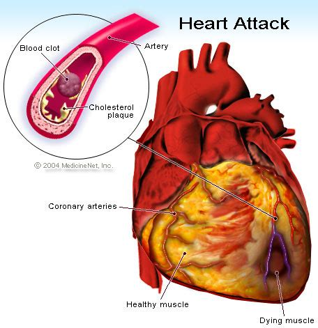 what foods affect the blood pressure test picture 9