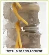 degenerative muscle diseases picture 19