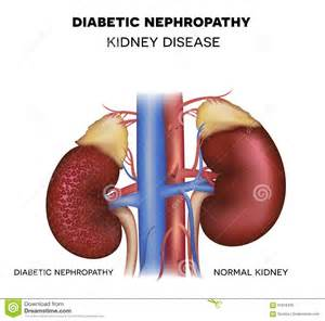 diet for diabetic kidney failure picture 11