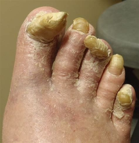 can touching toenails with fungus cause your fingernails picture 6