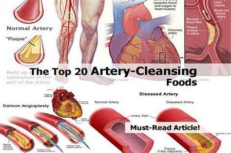 artery cleanse herbs picture 10