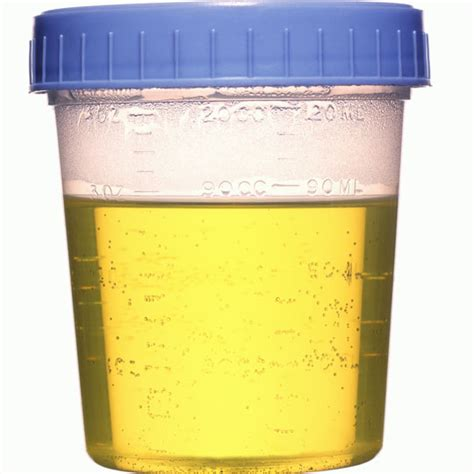 will herbal supplements affect a urine drug test picture 4