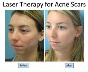 acne mark laser treatment picture 7