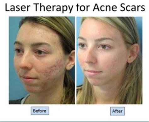 co2 laser treatment for acne scars picture 7