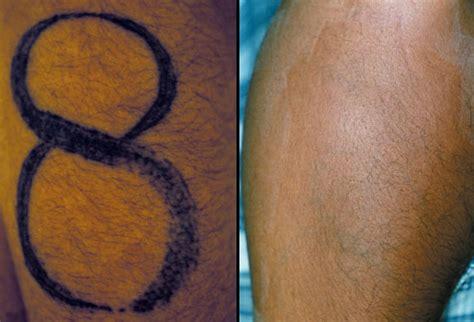 dermabrasion for black skin picture 5