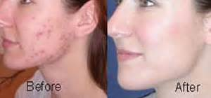 acne laser treatment picture 3