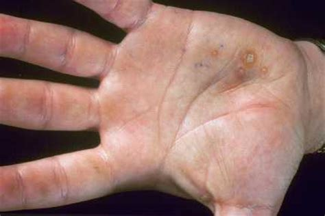 symptoms tiny warts on palm picture 1