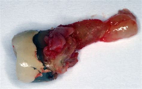 infection in teeth picture 3