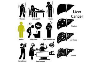 liver cancer early symptoms picture 5