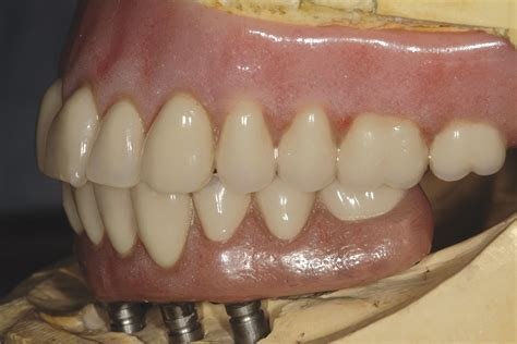 acrylic characterized teeth picture 13