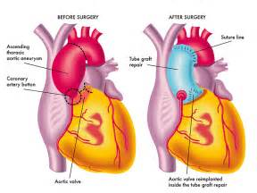 thoracic aneurysm and symptoms high blood pressure headache picture 6