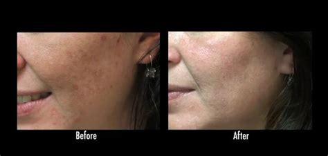 acne scar revision in encino picture 6