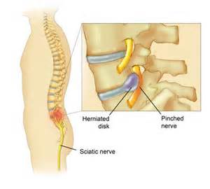 pinched nerve relief picture 1