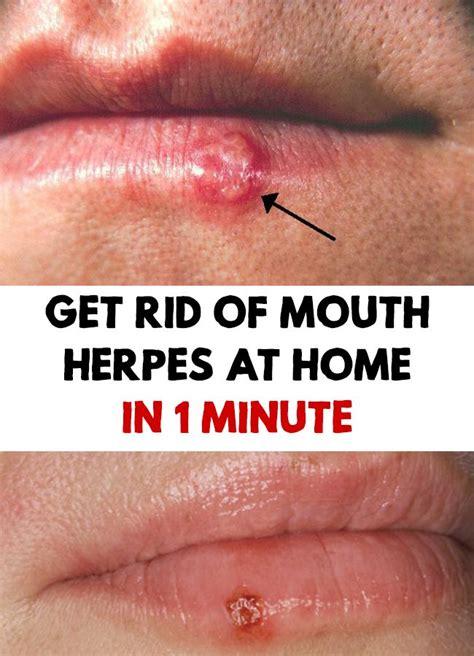 apple cider genital vinigar on herpes picture 12