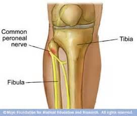 nerve damage h picture 6