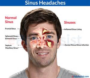 sinus pain relief picture 3