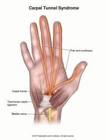 can tarcel tunnel syndrome give u pain in picture 3