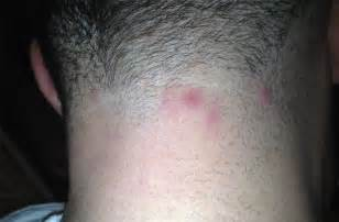 acne in hair picture 5