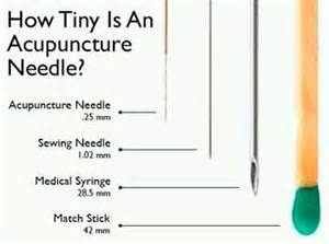 acupuncture pain relief picture 9