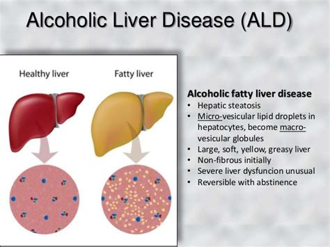 alcohol liver problems picture 3