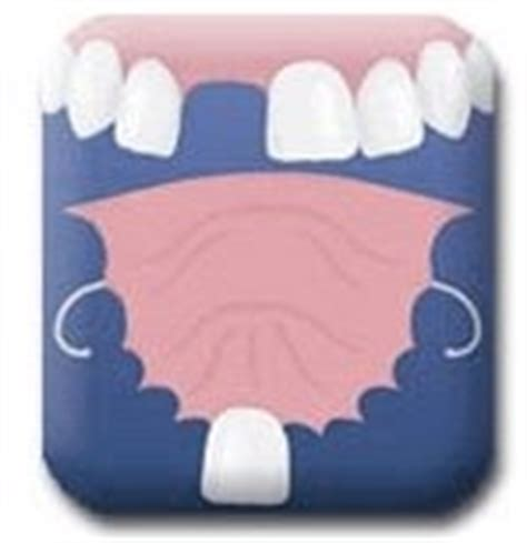 single tooth stay plate picture 1