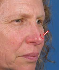 san diego skin laser treatment picture 15