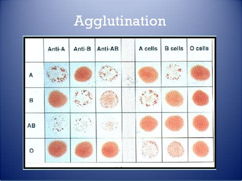 agglutination picture 2