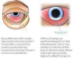herpes in the eyes symptoms picture 6