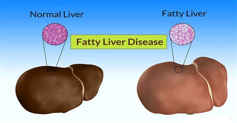 can pcos lead to a fatty liver picture 5
