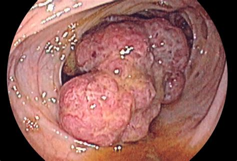 colon cancer and fever picture 9