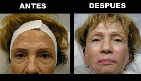 acne treatment in miami fl picture 17