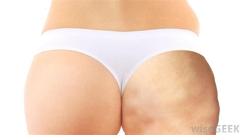 cellulite and new advances in the medical world to eliminate it picture 2