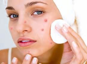 why does acuzine work to clear acne picture 8