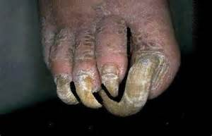 picture of toenail fungus picture 5