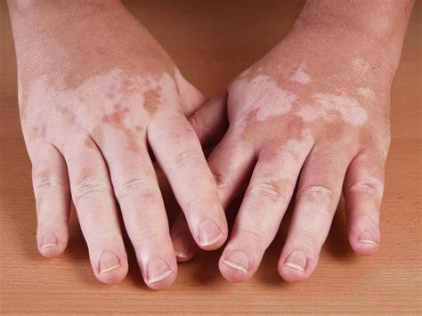 skin care for vitaligo picture 15