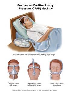bi-pap machine used in sleep apnea picture 13