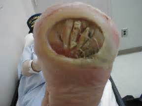 canine bleeding skin ulceration picture 6