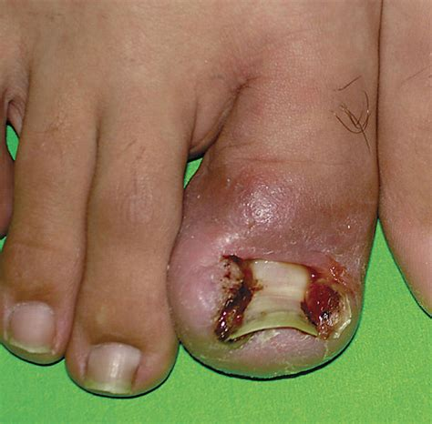 clear toenail fungus picture 10