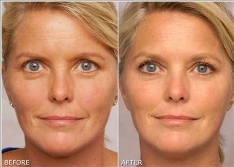 women before and after aging picture 7