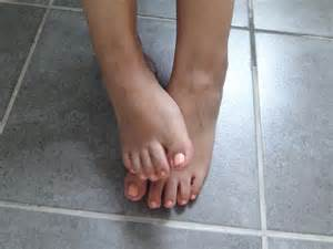 very dry skin on feet picture 1