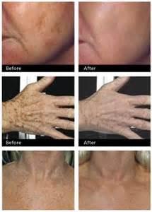 dr scholls freeze away liver spots picture 10